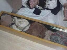 Imam Wahabi Menyerupai Pendeta Yahudi memakai ghurtah kain penutup kepala (tapi bukan sorban/turban)11